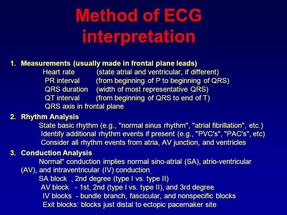 Method of ECG interpretation
