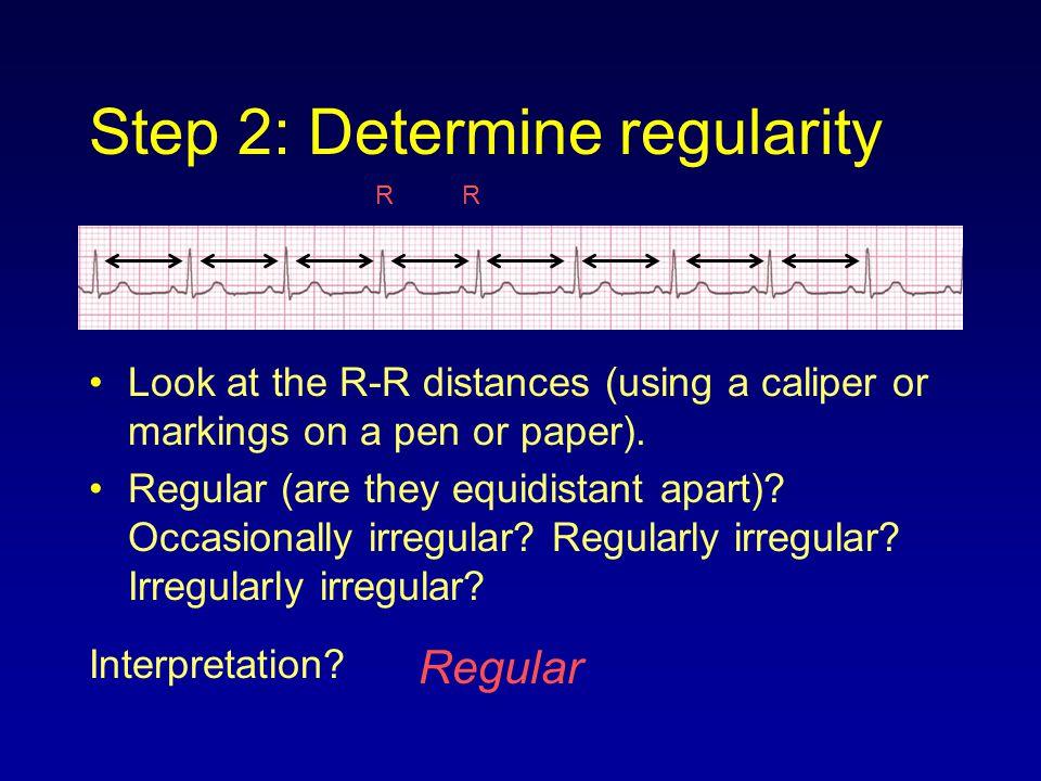 Step 2: Determine regularity