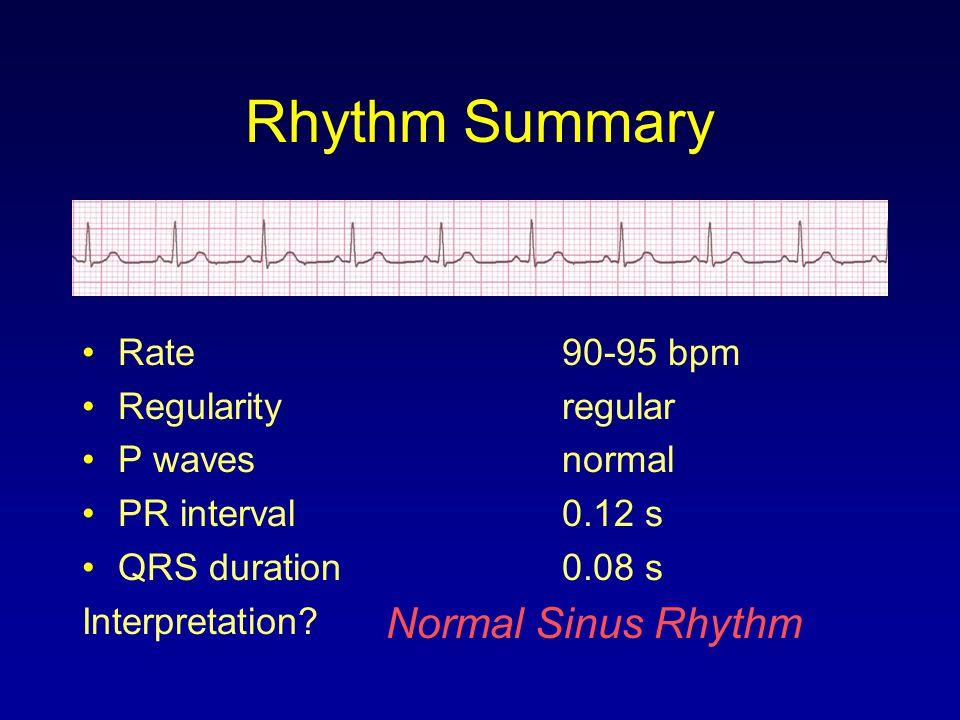 Rhythm Summary Normal Sinus Rhythm Rate 90-95 bpm Regularity regular