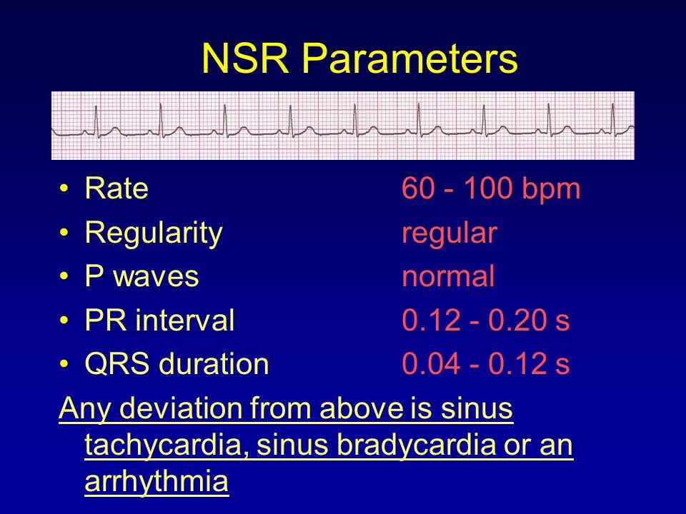 NSR Parameters Rate 60 - 100 bpm Regularity regular P waves normal
