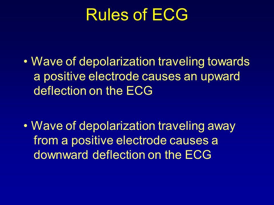 Rules of ECG