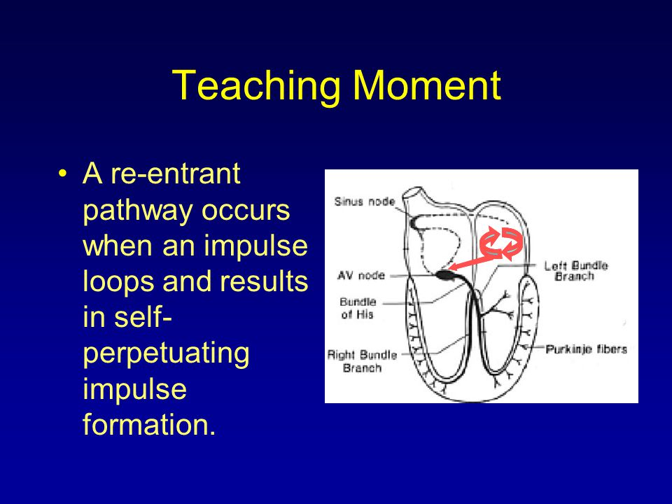 Teaching Moment A re-entrant pathway occurs when an impulse loops and results in self-perpetuating impulse formation.