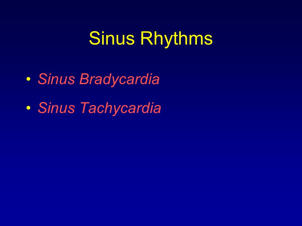 Sinus Rhythms Sinus Bradycardia Sinus Tachycardia