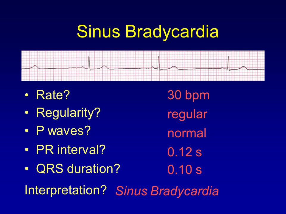 Sinus Bradycardia Rate 30 bpm Regularity regular P waves normal