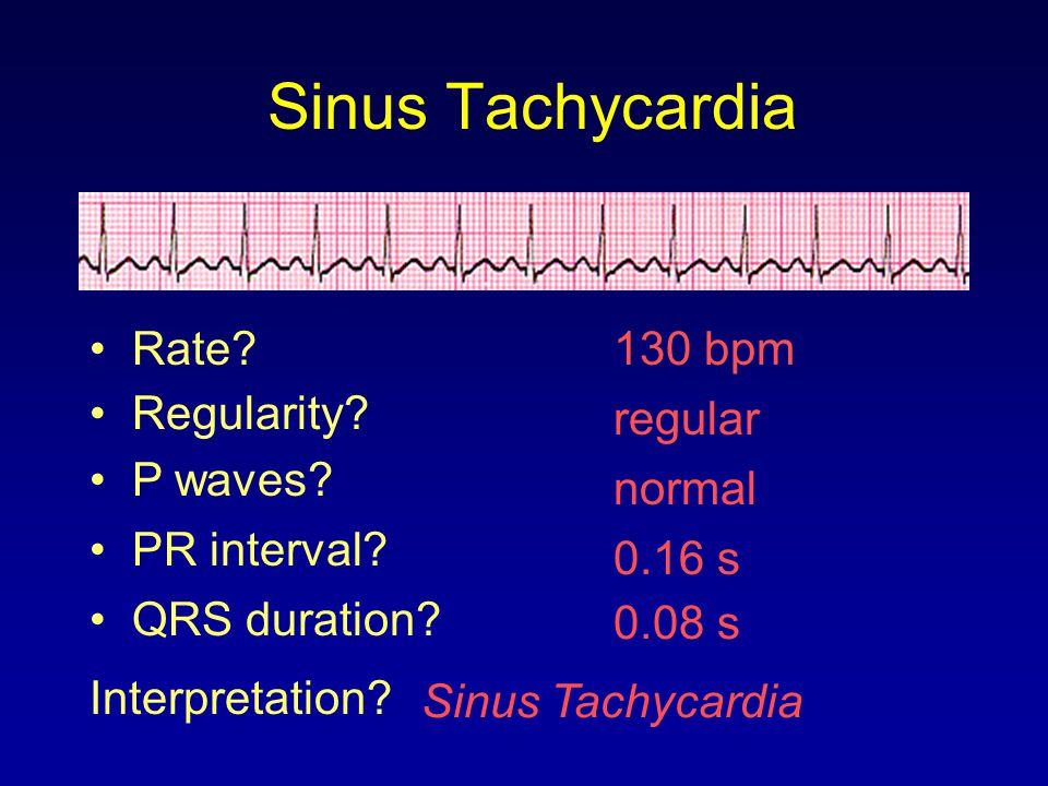 Sinus Tachycardia Rate 130 bpm Regularity regular P waves normal