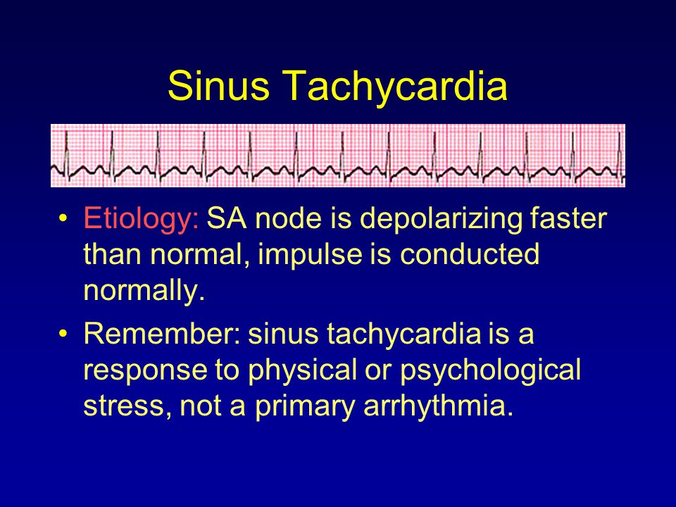 Sinus Tachycardia Etiology: SA node is depolarizing faster than normal, impulse is conducted normally.