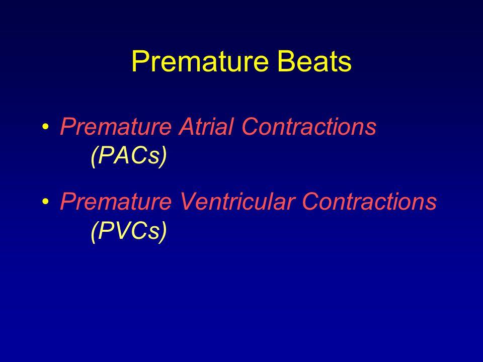 Premature Beats Premature Atrial Contractions (PACs)