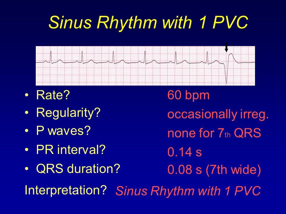 Sinus Rhythm with 1 PVC Rate 60 bpm Regularity occasionally irreg.