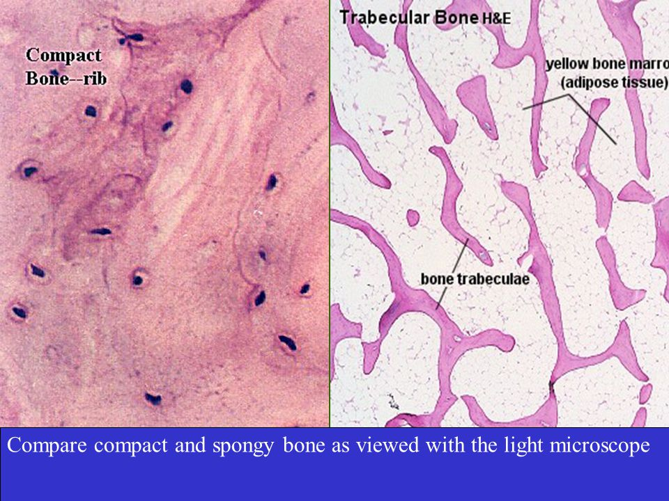 Compare compact and spongy bone as viewed with the light microscope