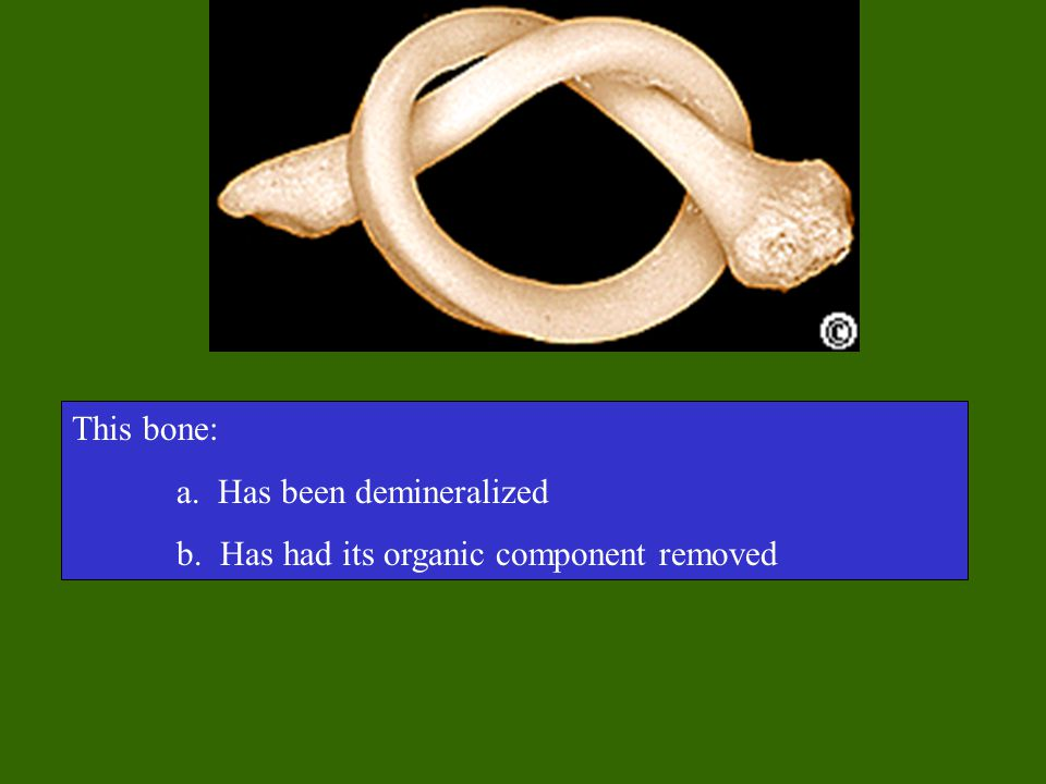 This bone: a. Has been demineralized b. Has had its organic component removed
