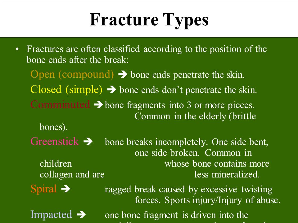 Fracture Types Open (compound)  bone ends penetrate the skin.