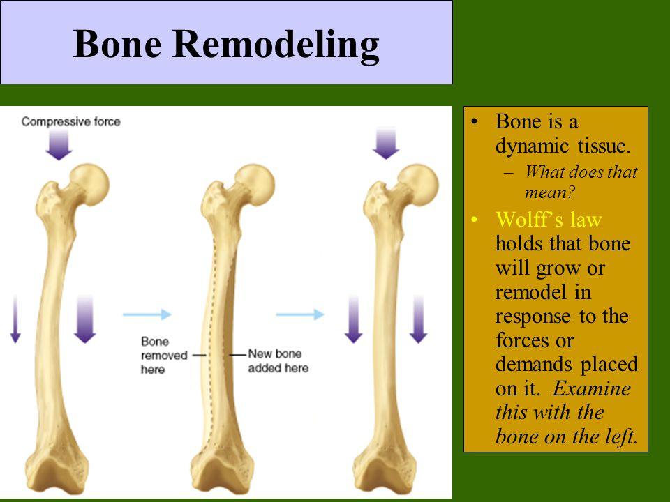 Bone Remodeling Bone is a dynamic tissue.