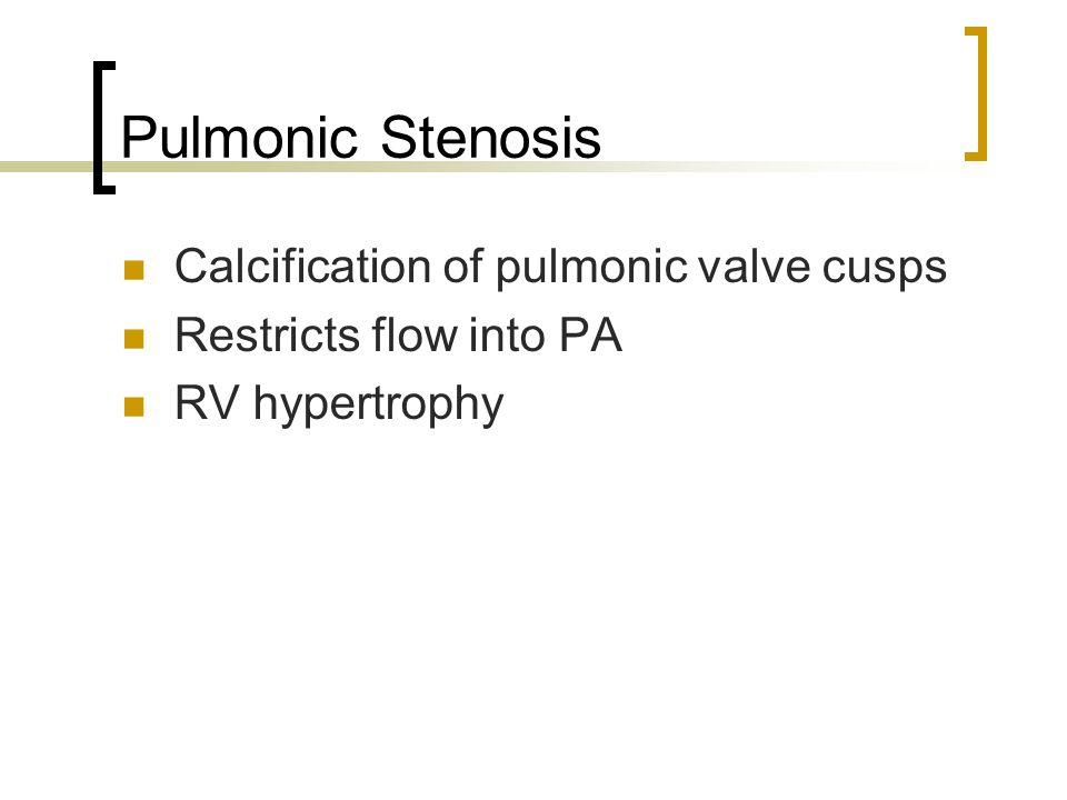 Pulmonic Stenosis Calcification of pulmonic valve cusps
