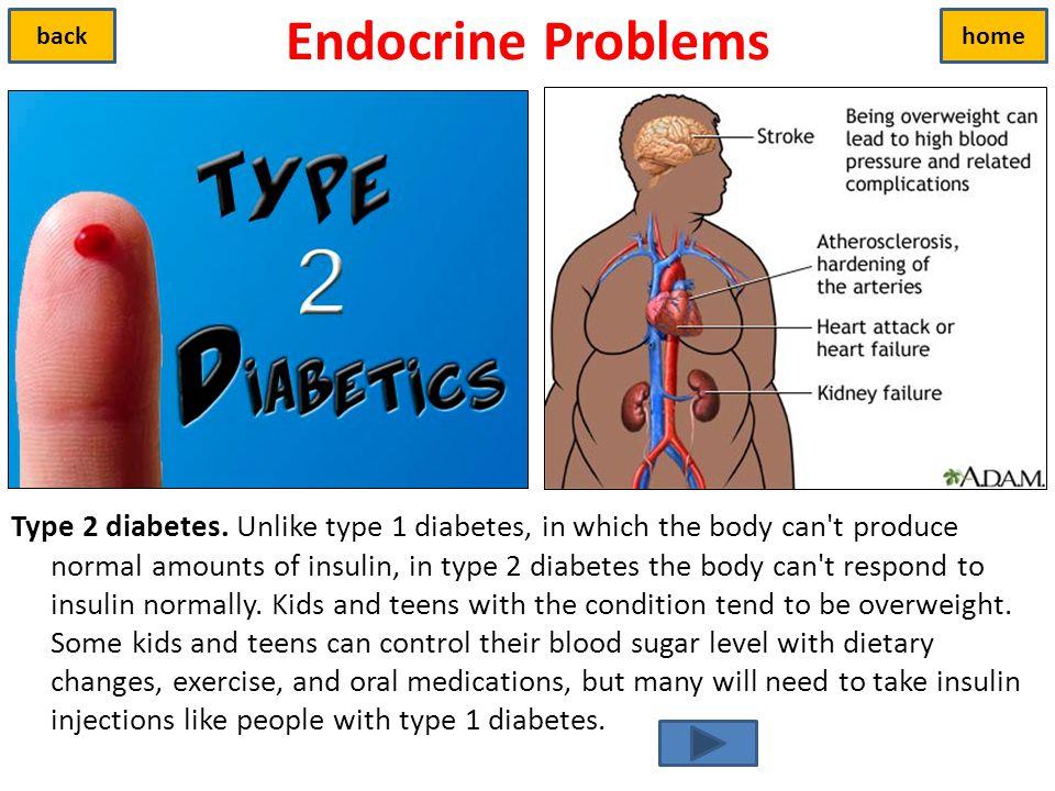 Endocrine Problems back. home.