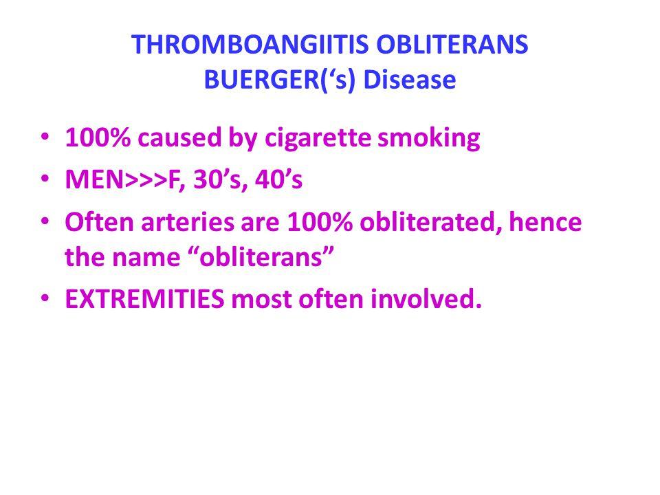 THROMBOANGIITIS OBLITERANS BUERGER('s) Disease