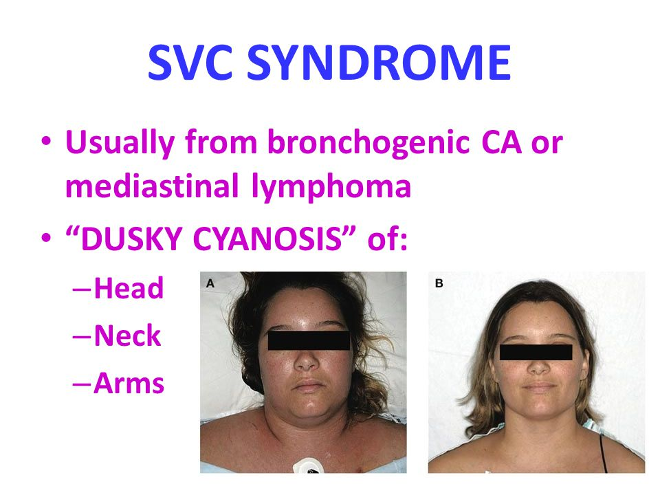 SVC SYNDROME Usually from bronchogenic CA or mediastinal lymphoma