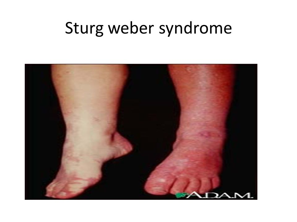 Sturg weber syndrome