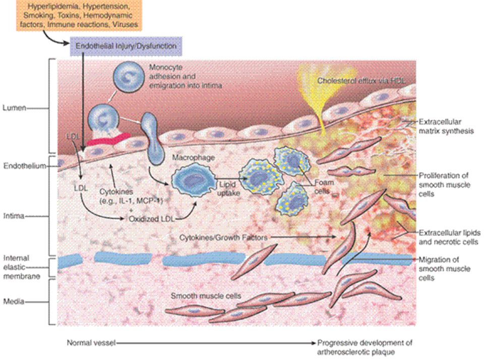This is the VERY VERY best diagram of atherosclerosis you will ever see.