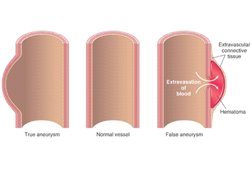 Know the difference between a TRUE (endothelial expansion) and FALSE (NO endothelial expansion) aneurysm