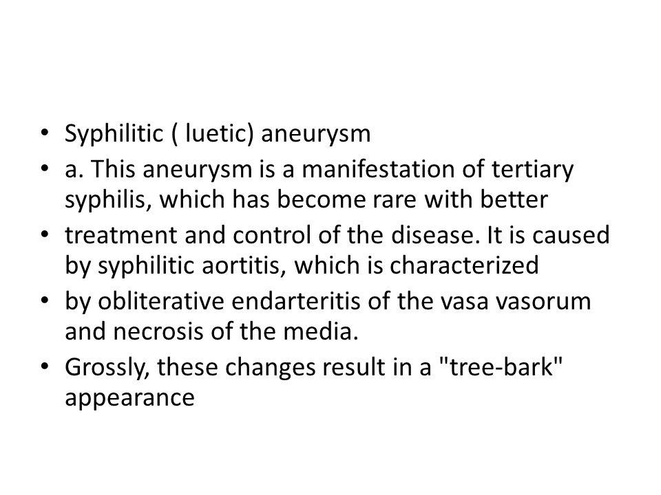 Syphilitic ( luetic) aneurysm