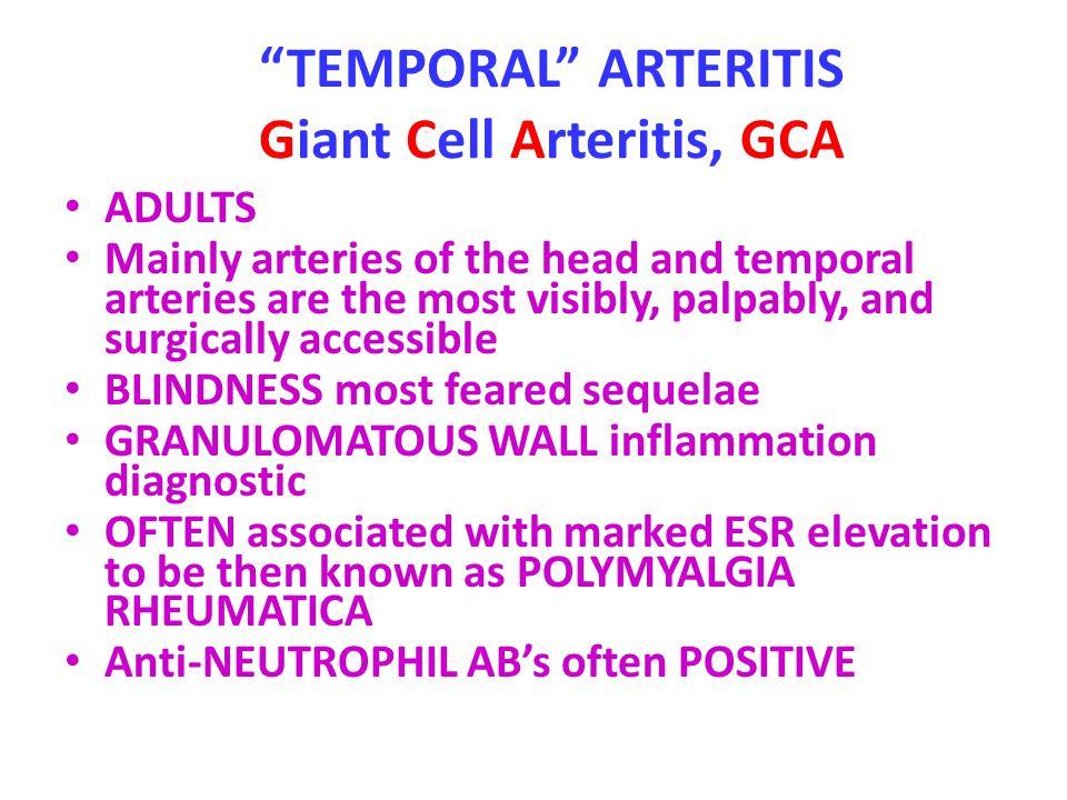 TEMPORAL ARTERITIS Giant Cell Arteritis, GCA