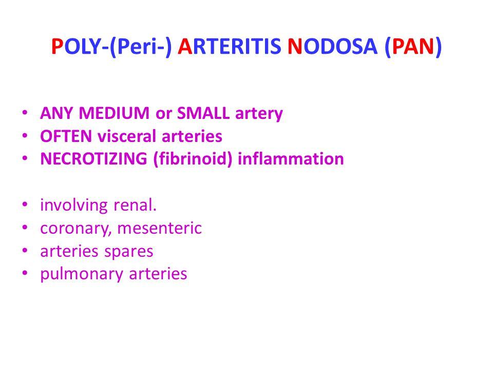 POLY-(Peri-) ARTERITIS NODOSA (PAN)