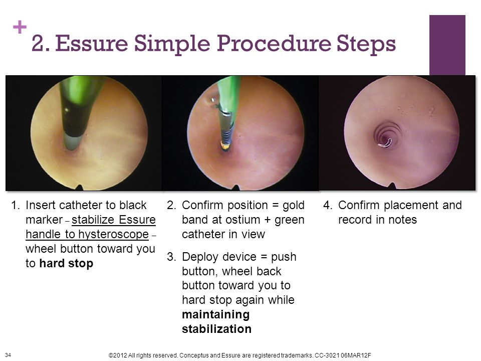 2. Essure Simple Procedure Steps