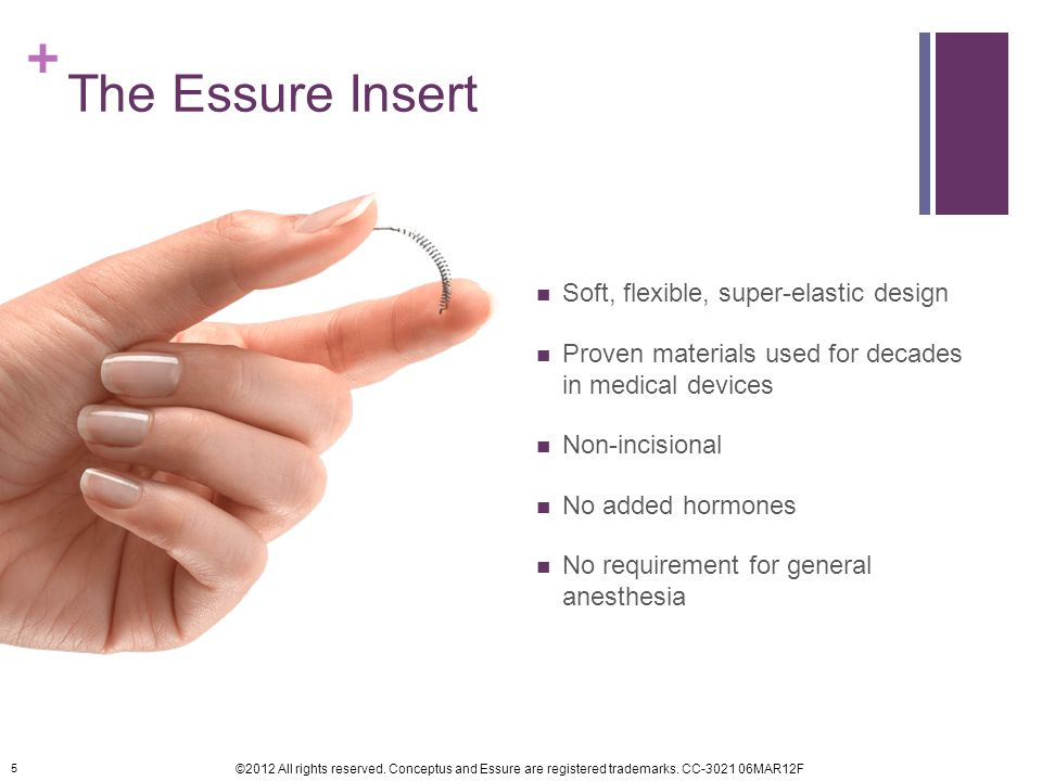 The Essure Insert Soft, flexible, super-elastic design