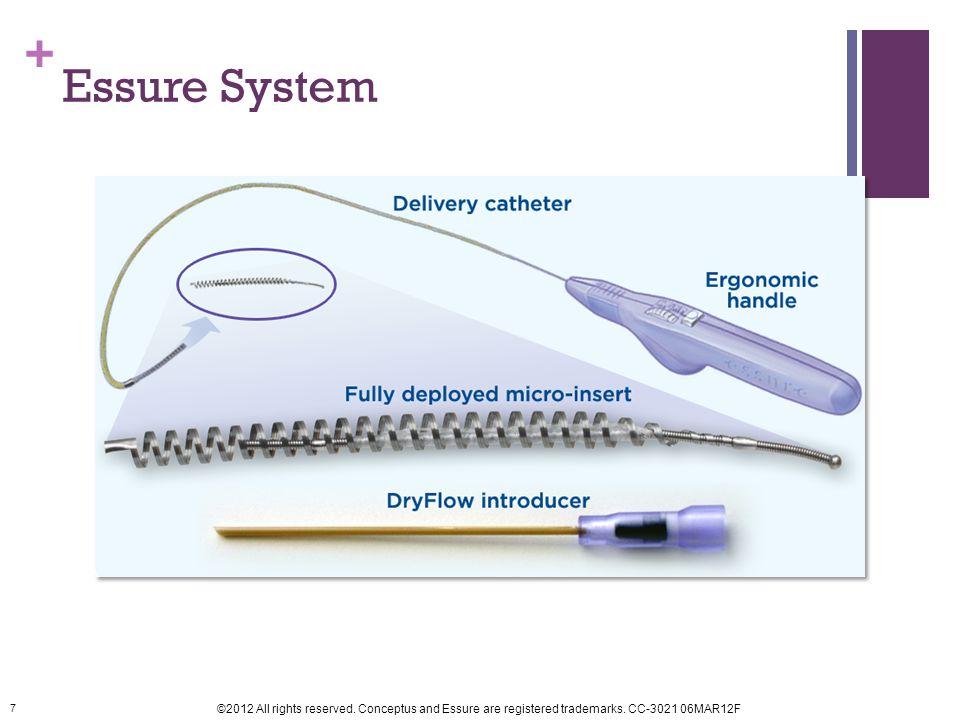 Essure System