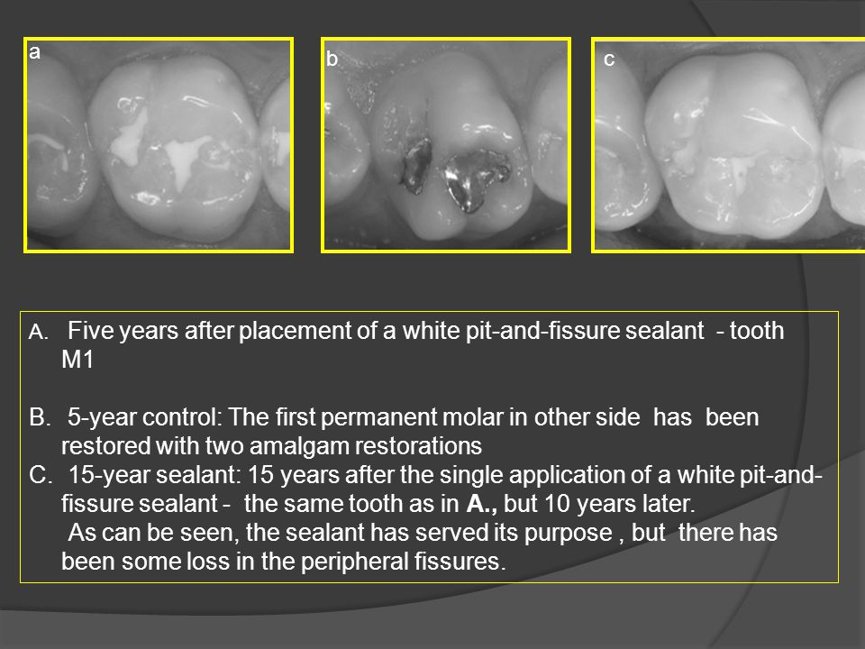 a b. c. Five years after placement of a white pit-and-fissure sealant - tooth M1.