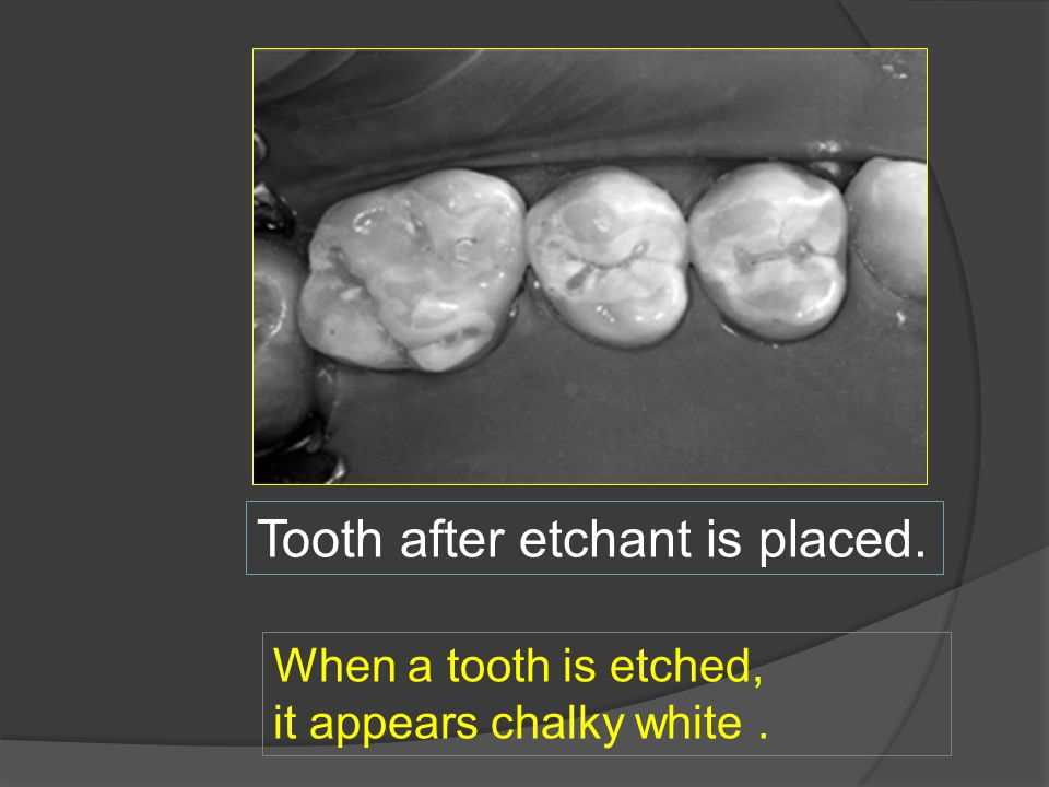 Tooth after etchant is placed.