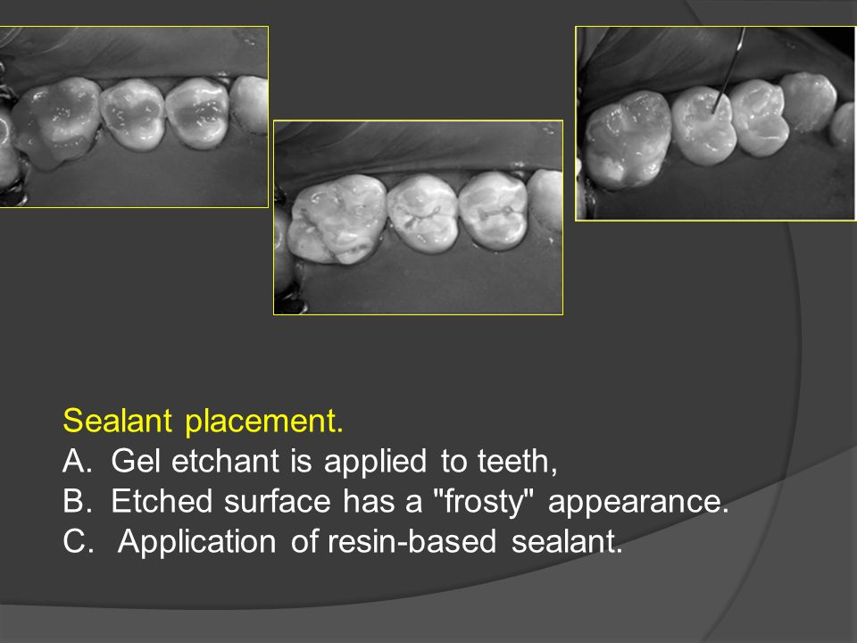 Sealant placement. Gel etchant is applied to teeth, Etched surface has a frosty appearance.