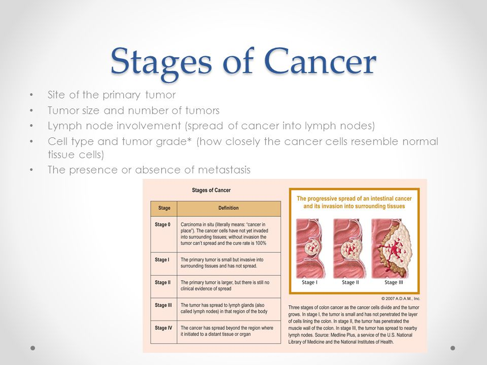 Stages of Cancer Site of the primary tumor