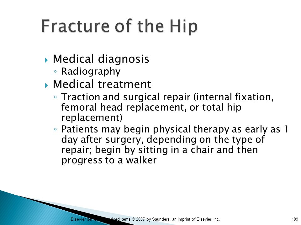 Fracture of the Hip Medical diagnosis Medical treatment Radiography