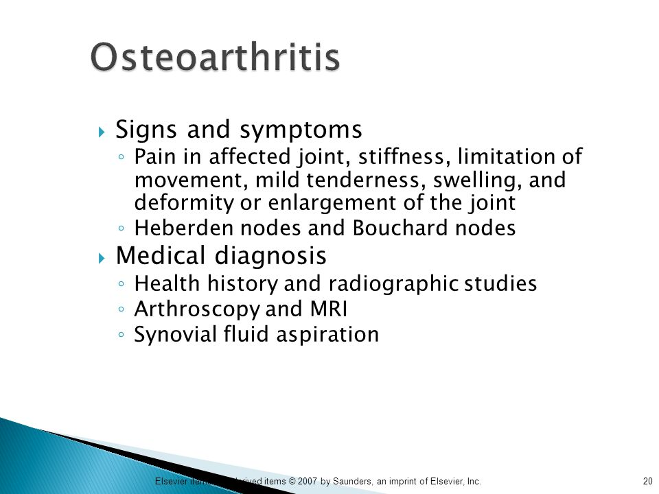 Osteoarthritis Signs and symptoms Medical diagnosis