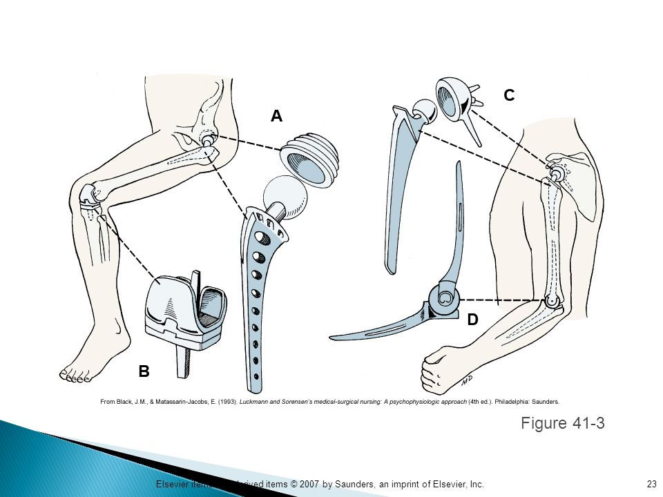 Figure 41-3