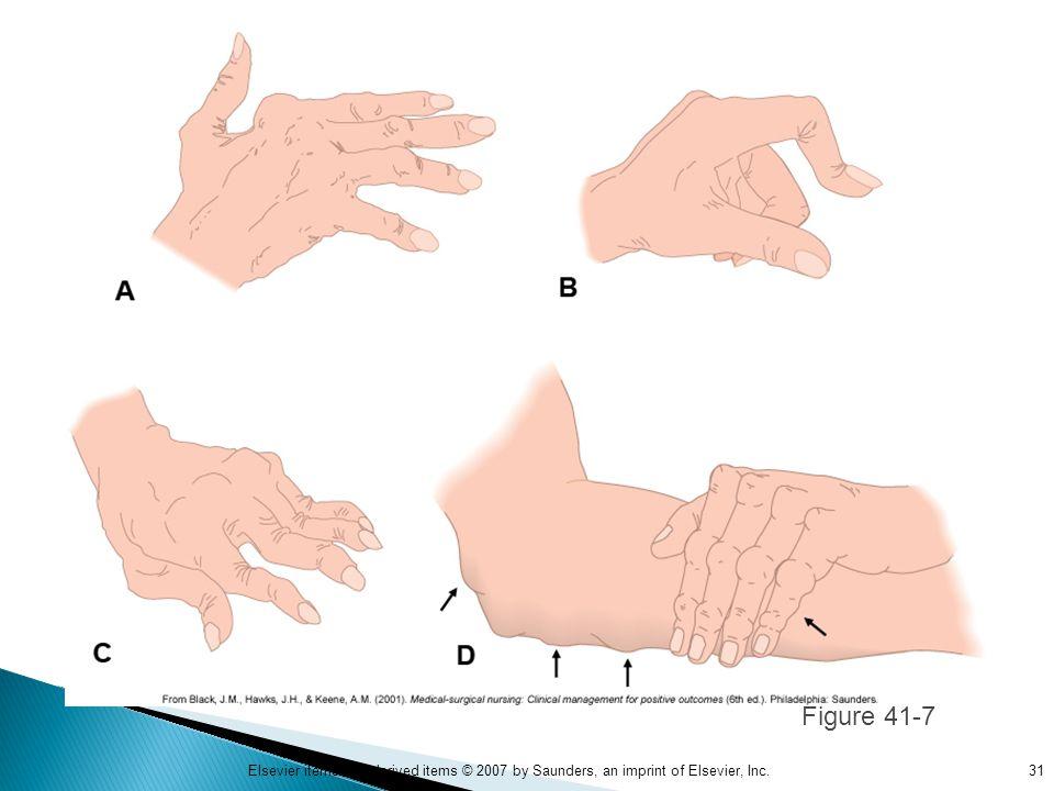 Figure 41-7