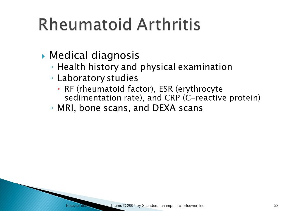 Rheumatoid Arthritis Medical diagnosis