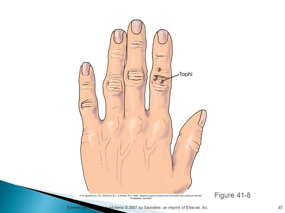 Figure 41-8