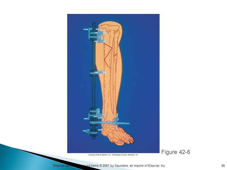 Figure 42-6