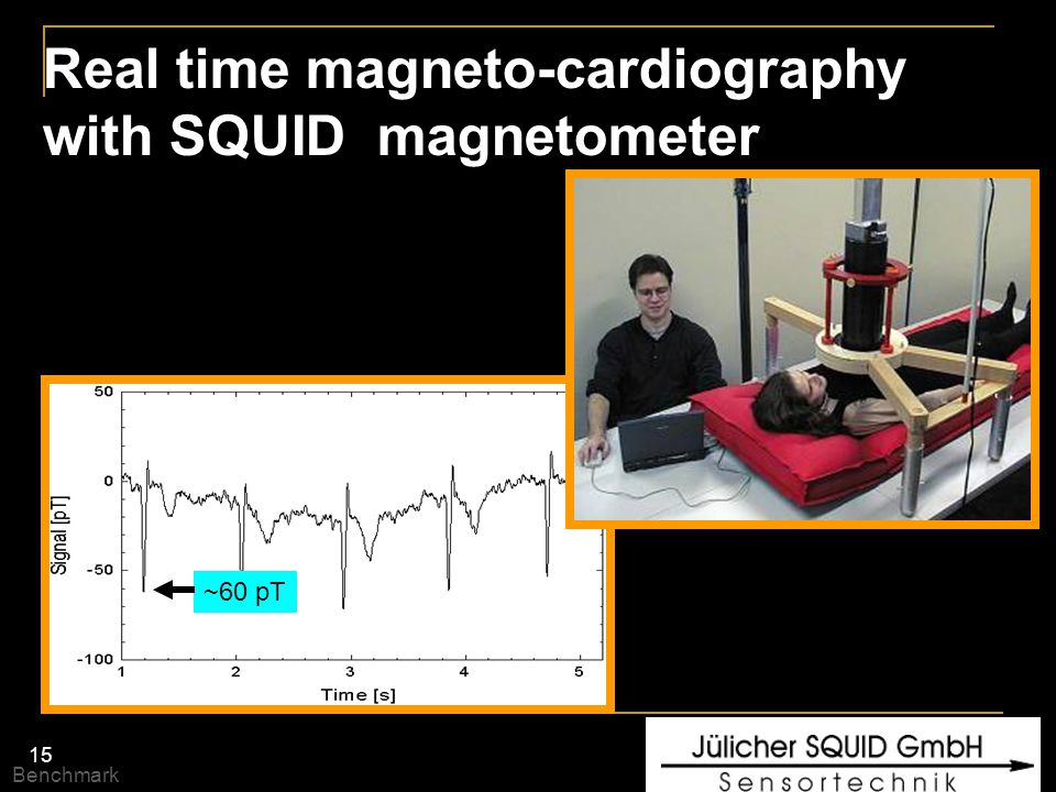 Real time magneto-cardiography with SQUID magnetometer