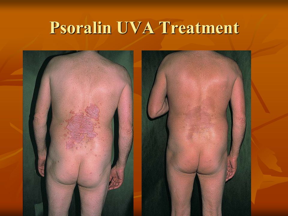 Psoralin UVA Treatment