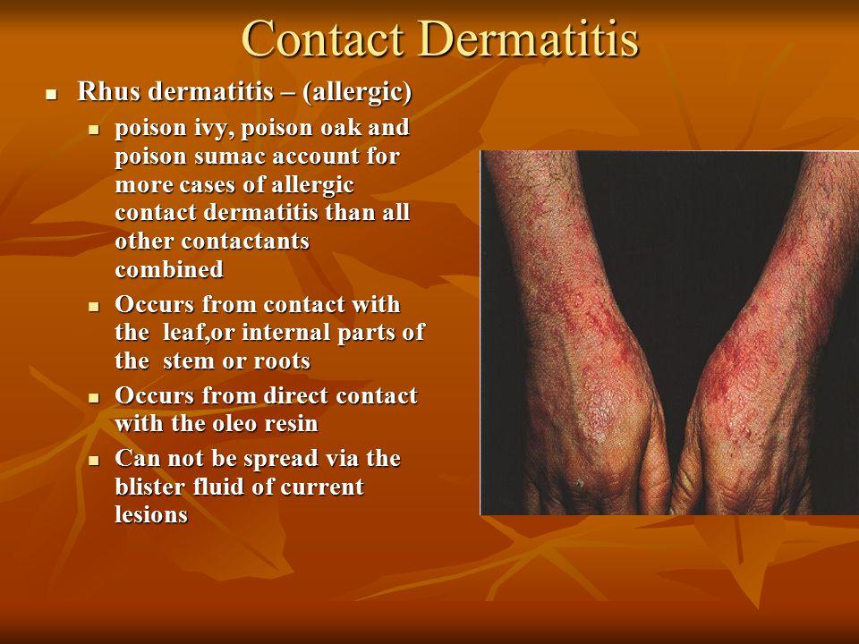 Contact Dermatitis Rhus dermatitis – (allergic)
