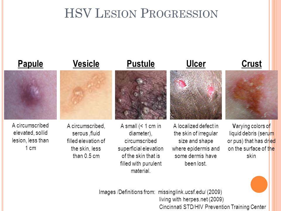 HSV Lesion Progression