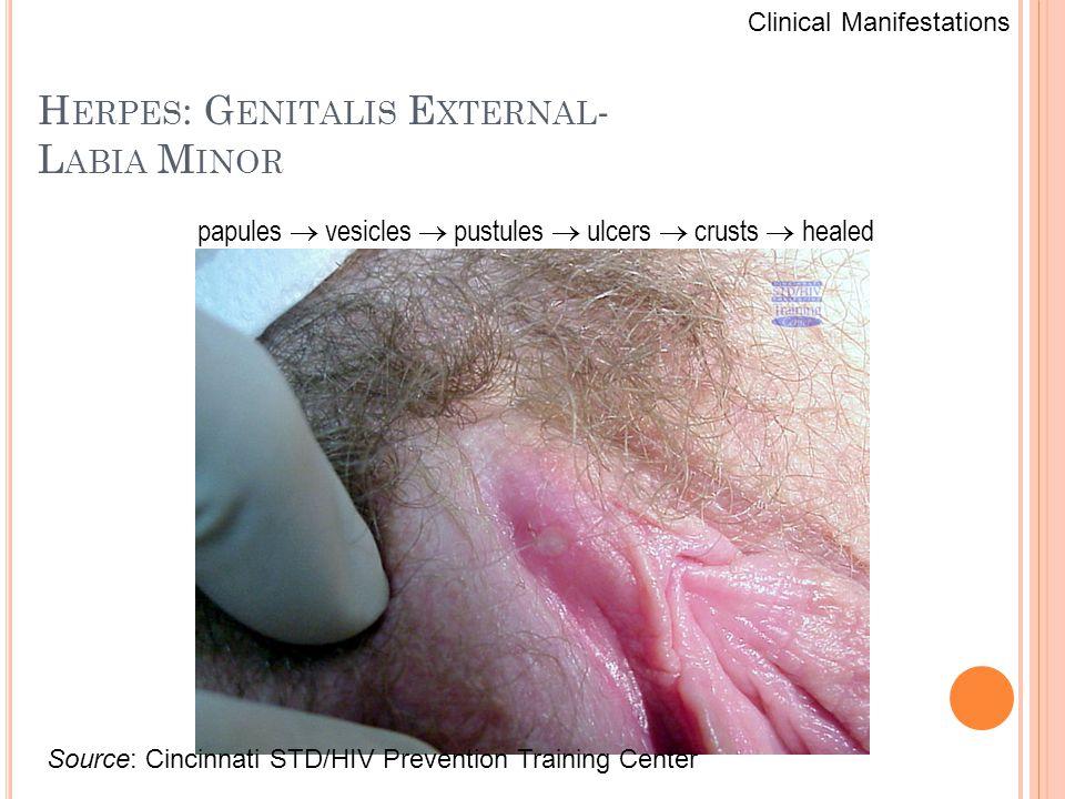 Herpes: Genitalis External- Labia Minor