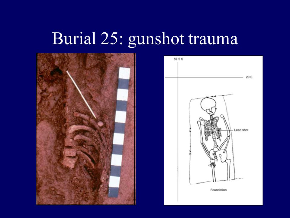 Burial 25: gunshot trauma
