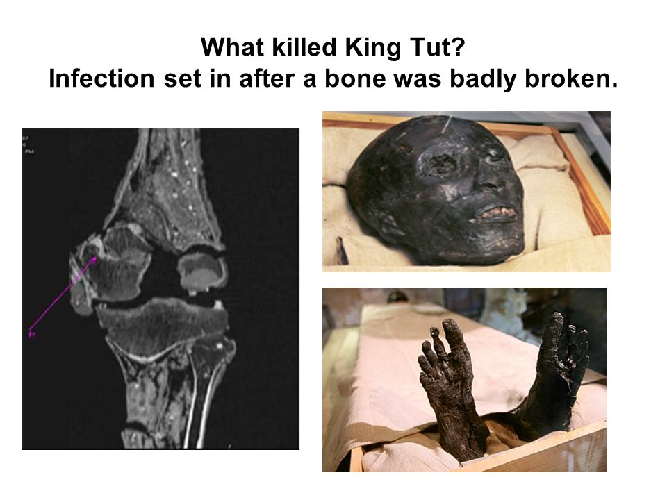 What killed King Tut Infection set in after a bone was badly broken.