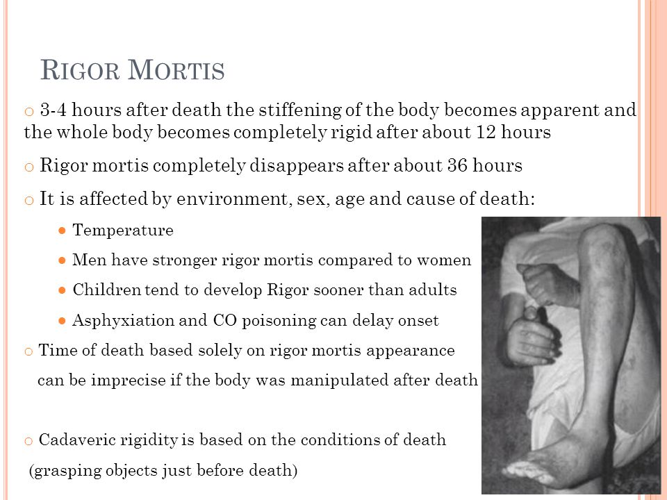 Rigor Mortis 3-4 hours after death the stiffening of the body becomes apparent and the whole body becomes completely rigid after about 12 hours.