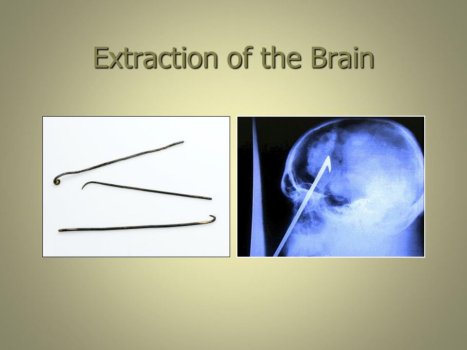 Extraction of the Brain