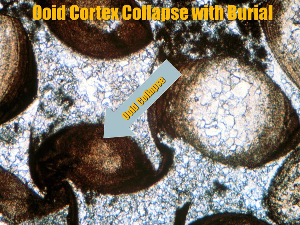 Ooid Cortex Collapse with Burial
